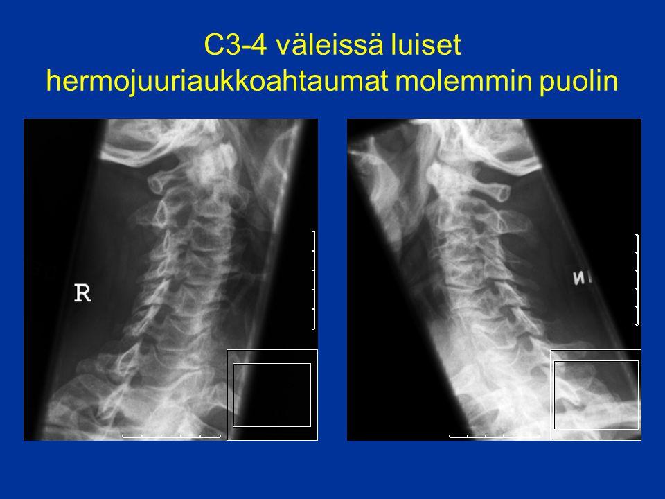 C3-4 väleissä luiset hermojuuriaukkoahtaumat molemmin puolin