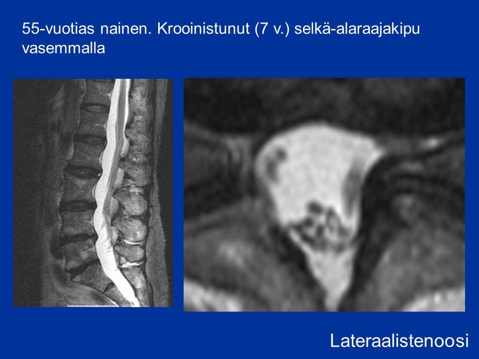 55-vuotias nainen. Krooinistunut (7 v.) selkä-alaraajakipu vasemmalla