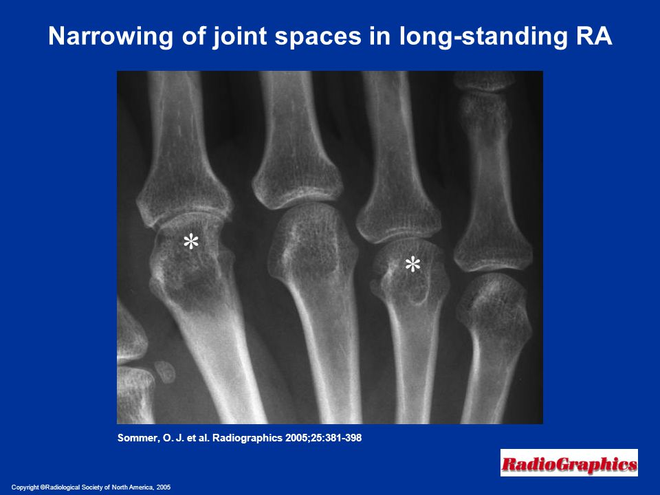 Narrowing of joint spaces in long-standing RA
