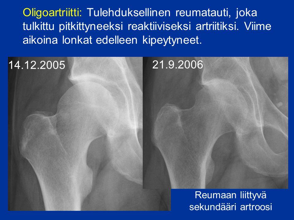 Reumaan liittyvä sekundääri artroosi