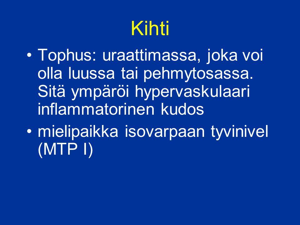 Kihti Tophus: uraattimassa, joka voi olla luussa tai pehmytosassa. Sitä ympäröi hypervaskulaari inflammatorinen kudos.