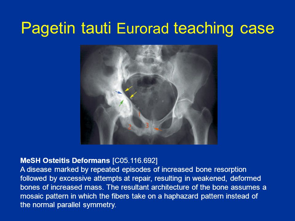 Pagetin tauti Eurorad teaching case