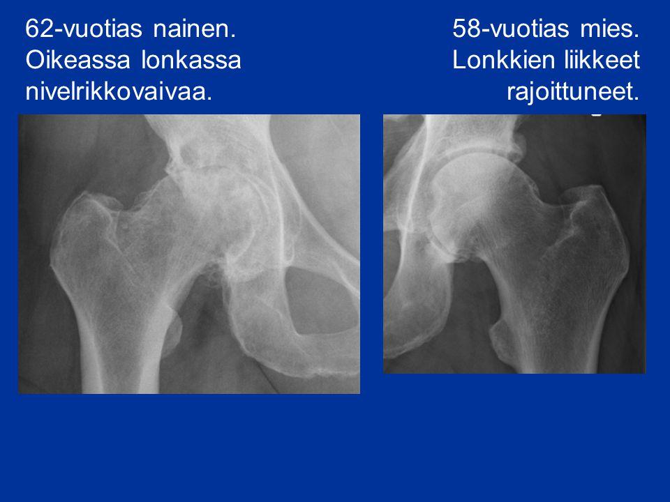 62-vuotias nainen. Oikeassa lonkassa nivelrikkovaivaa.