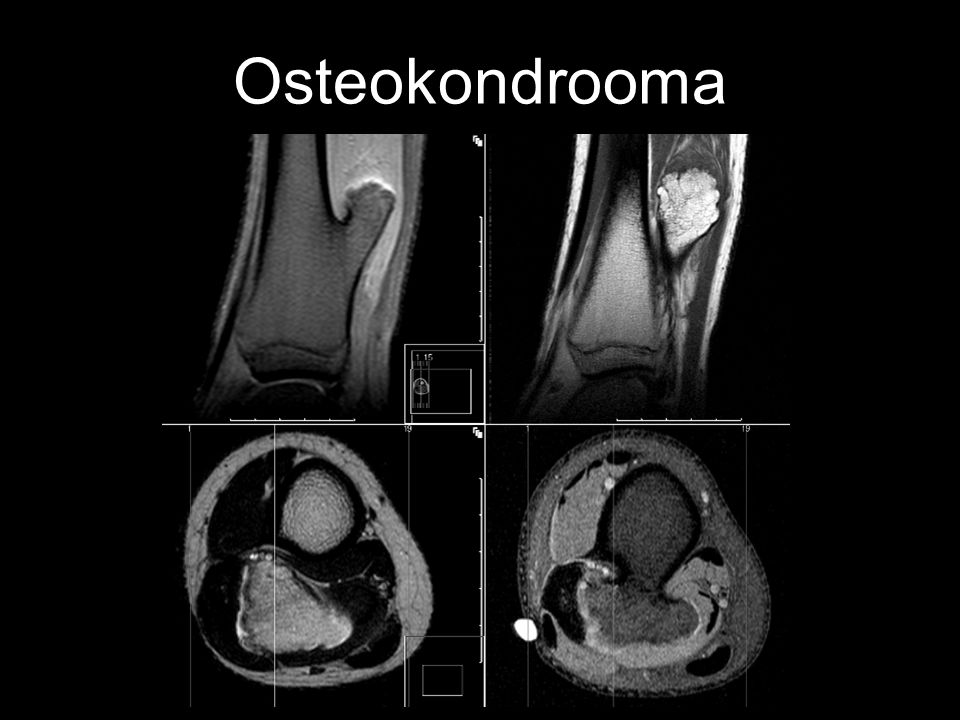 Osteokondrooma
