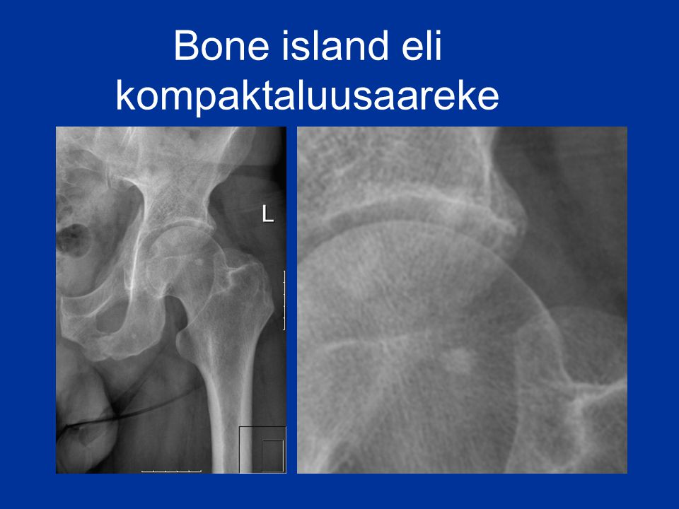 Bone island eli kompaktaluusaareke