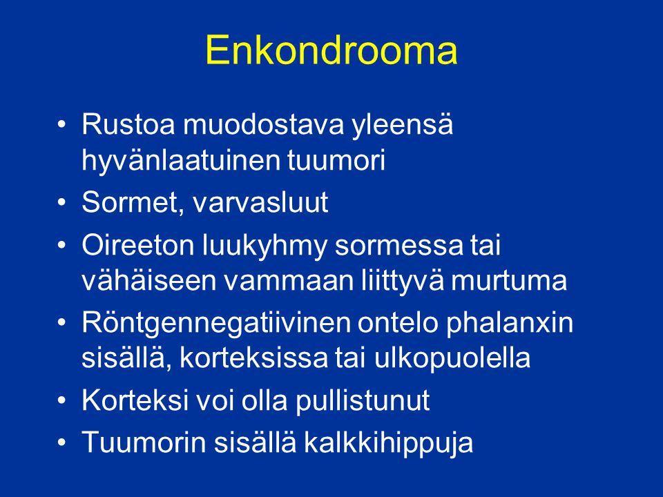 Enkondrooma Rustoa muodostava yleensä hyvänlaatuinen tuumori