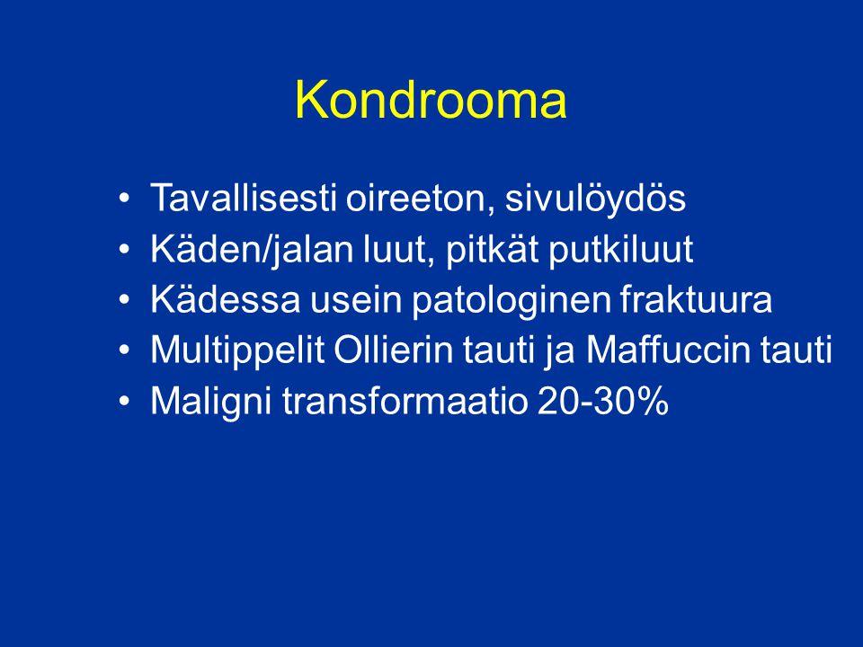 Kondrooma Tavallisesti oireeton, sivulöydös