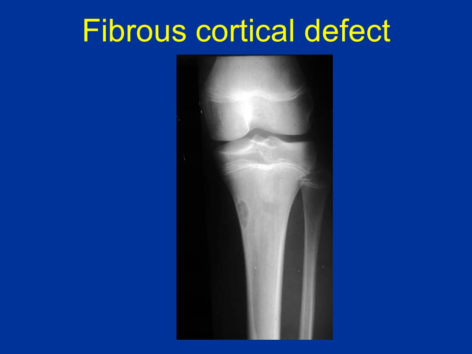 Fibrous cortical defect