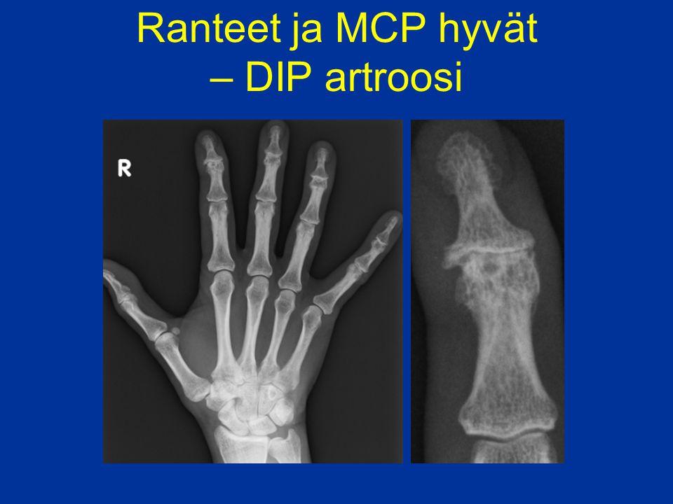 Ranteet ja MCP hyvät – DIP artroosi