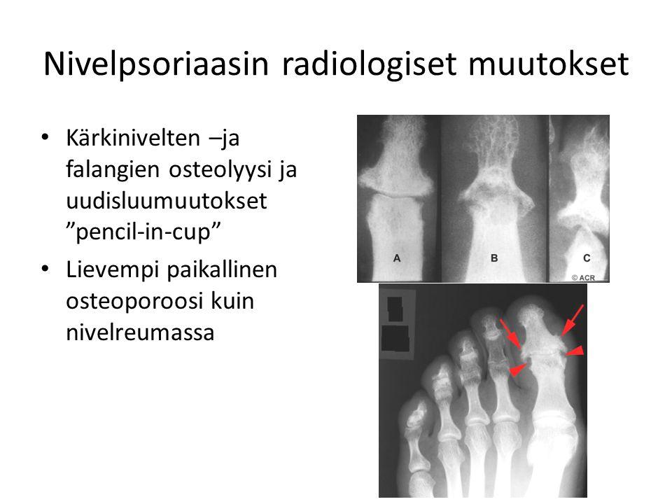 Nivelpsoriaasin radiologiset muutokset