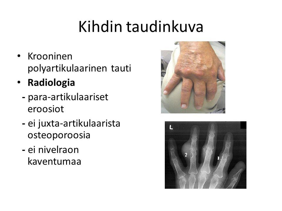 Kihdin taudinkuva Krooninen polyartikulaarinen tauti Radiologia