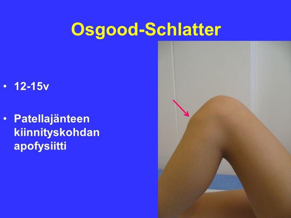 Osgood-Schlatter 12-15v Patellajänteen kiinnityskohdan apofysiitti