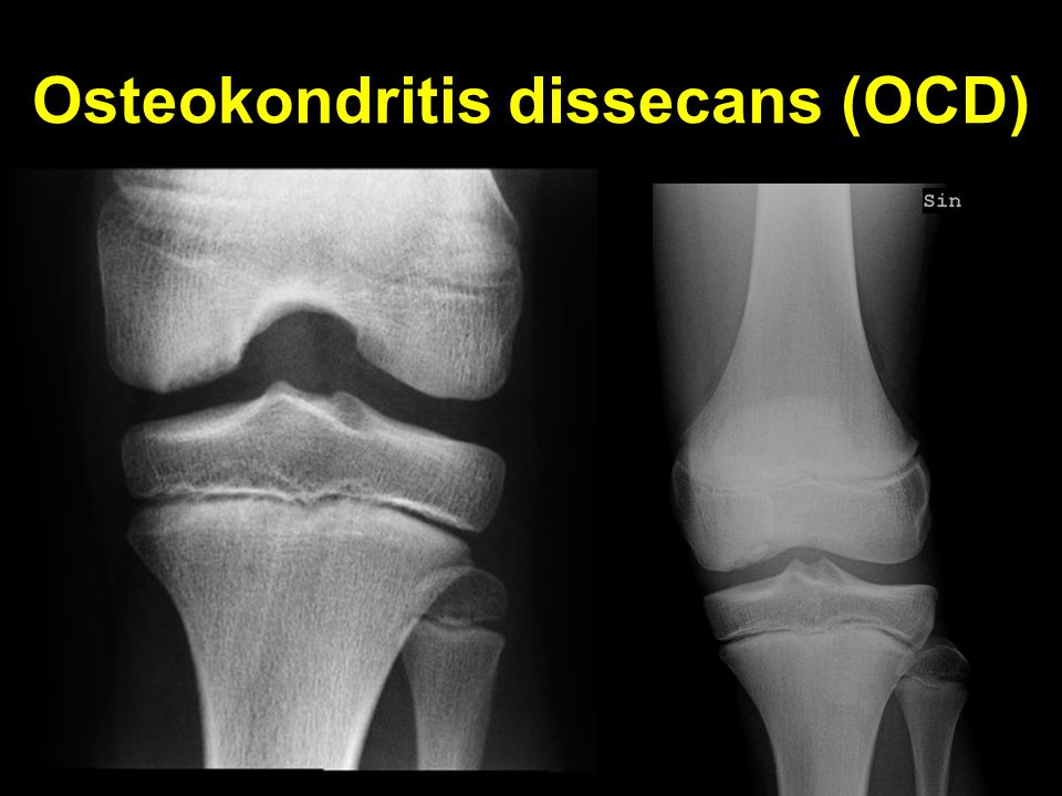 Osteokondritis dissecans (OCD)
