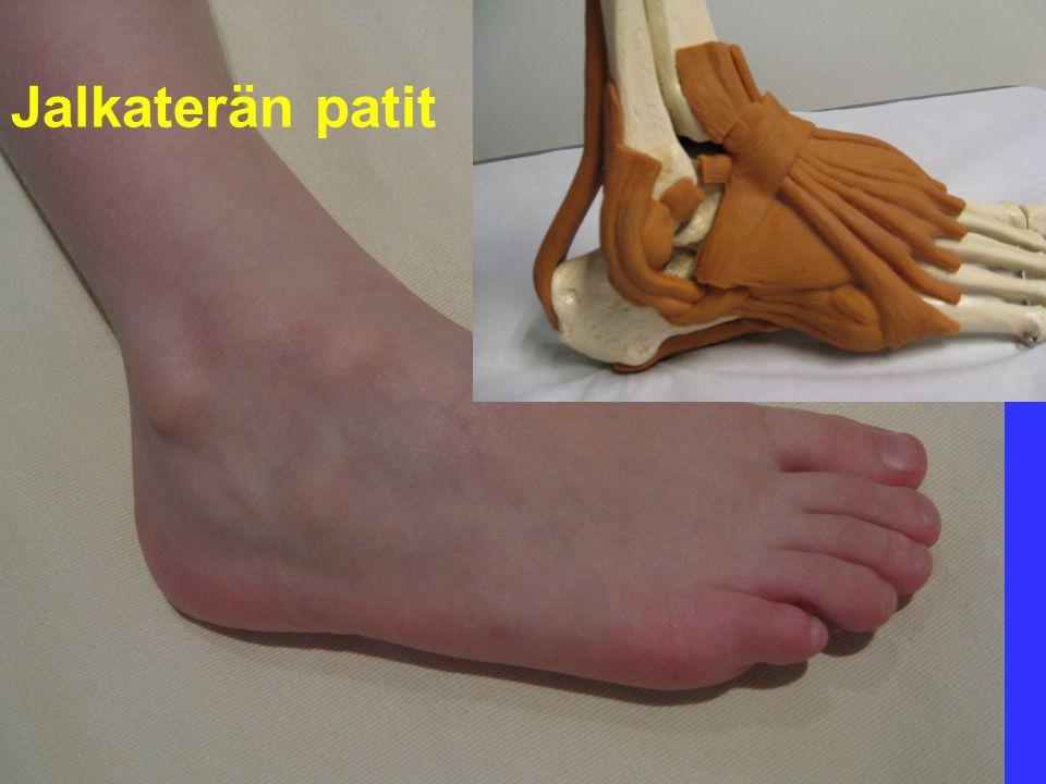Jalkaterän patit