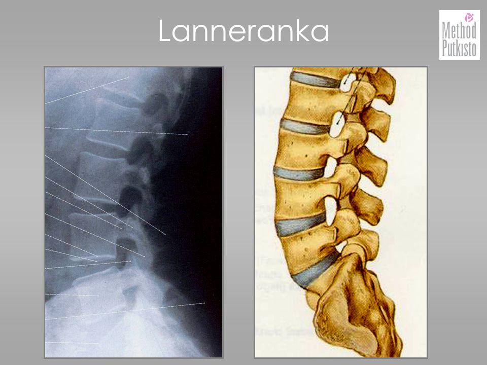 Lanneranka