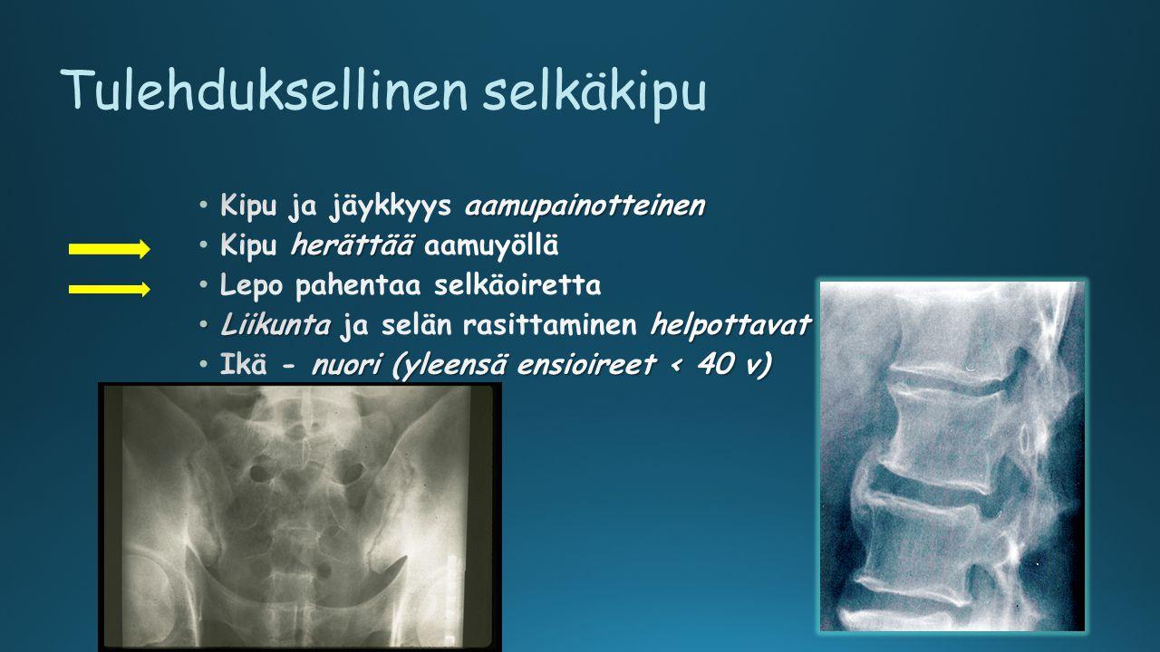 Tulehduksellinen selkäkipu
