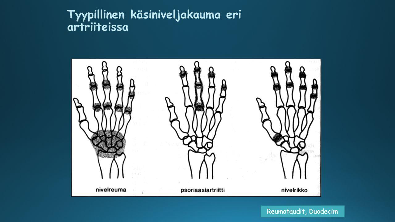 Tyypillinen käsiniveljakauma eri artriiteissa
