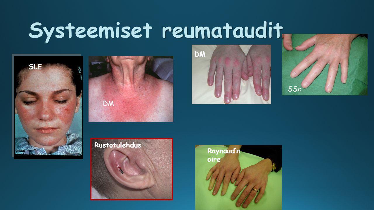 Systeemiset reumataudit