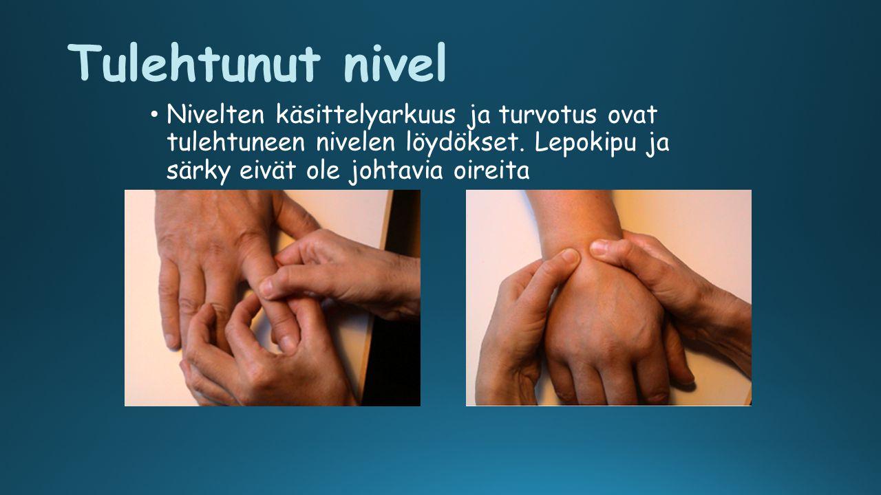 Tulehtunut nivel Nivelten käsittelyarkuus ja turvotus ovat tulehtuneen nivelen löydökset.