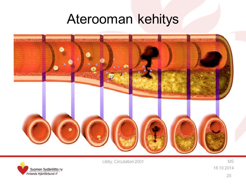 Aterooman kehitys Libby, Circulation 2001 MS 16.10.2014
