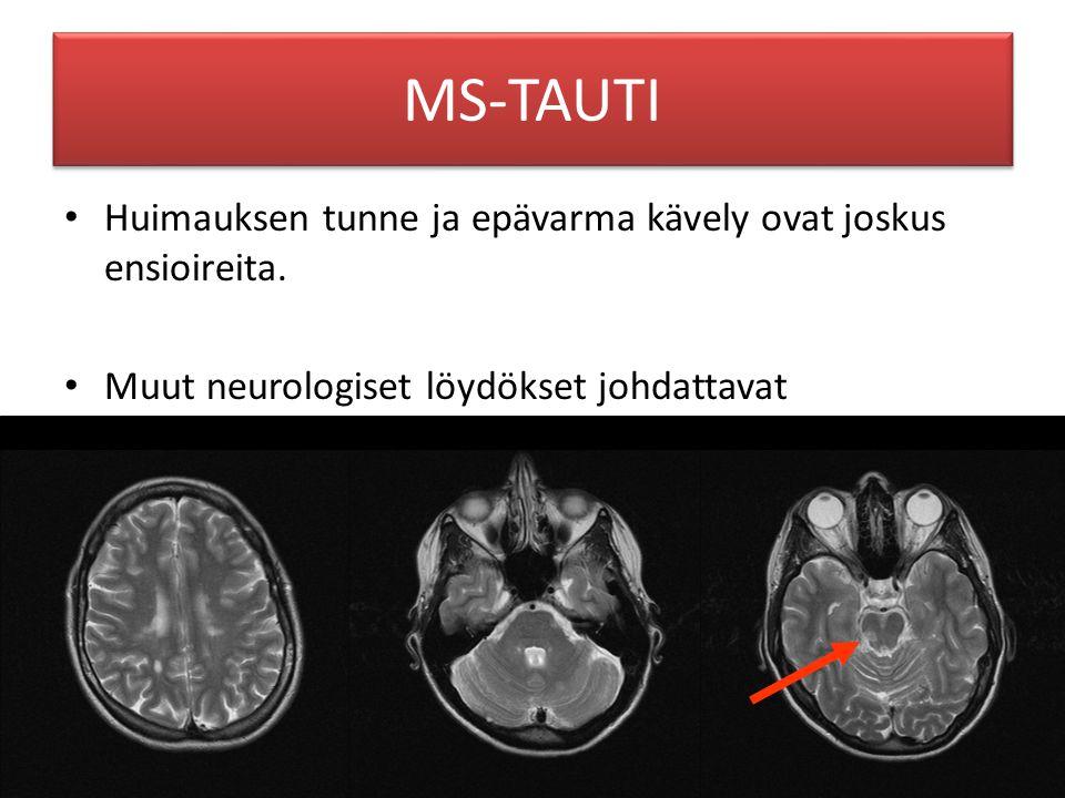 MS-TAUTI Huimauksen tunne ja epävarma kävely ovat joskus ensioireita.