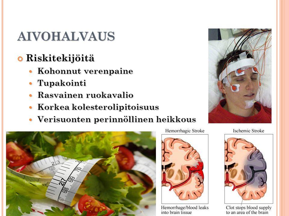 AIVOHALVAUS Riskitekijöitä Kohonnut verenpaine Tupakointi