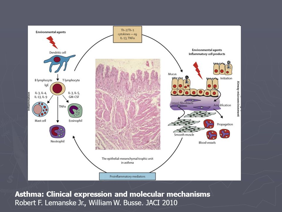 Asthma: Clinical expression and molecular mechanisms