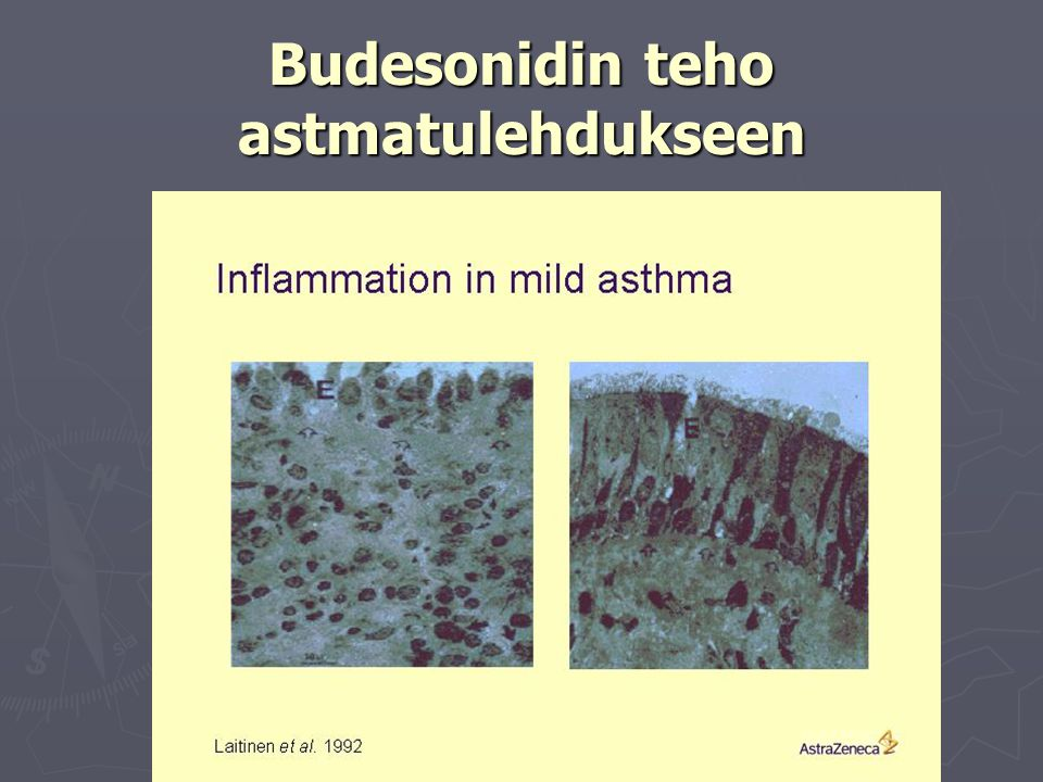 Budesonidin teho astmatulehdukseen