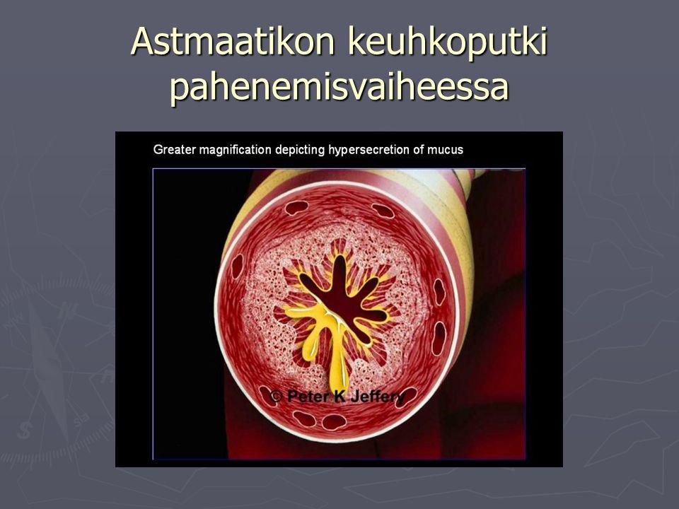 Astmaatikon keuhkoputki pahenemisvaiheessa