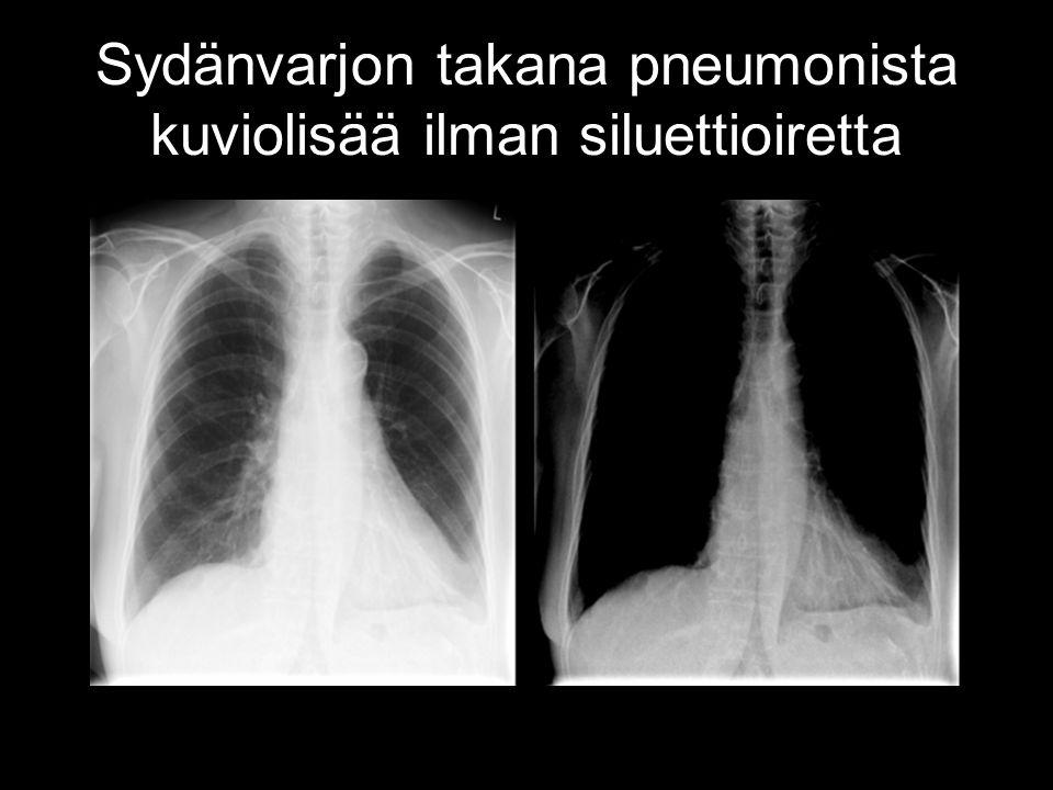 Sydänvarjon takana pneumonista kuviolisää ilman siluettioiretta