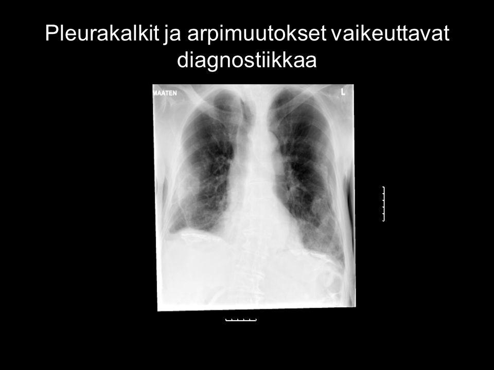Pleurakalkit ja arpimuutokset vaikeuttavat diagnostiikkaa