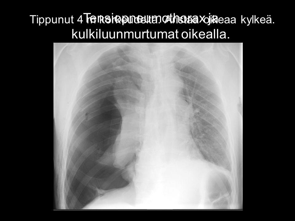 Tensiopneumothorax ja kulkiluunmurtumat oikealla. Jänniteilmarinta