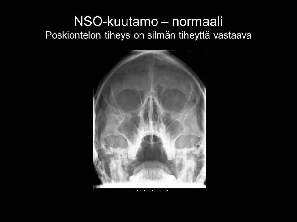 NSO-kuutamo – normaali Poskiontelon tiheys on silmän tiheyttä vastaava