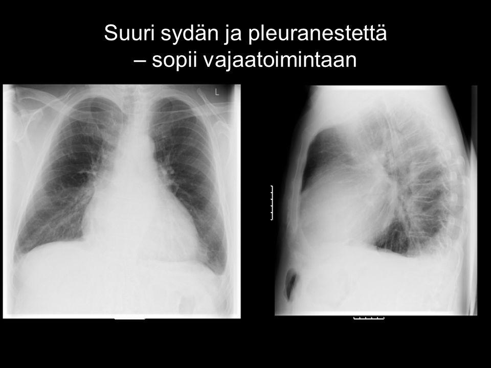 Suuri sydän ja pleuranestettä – sopii vajaatoimintaan