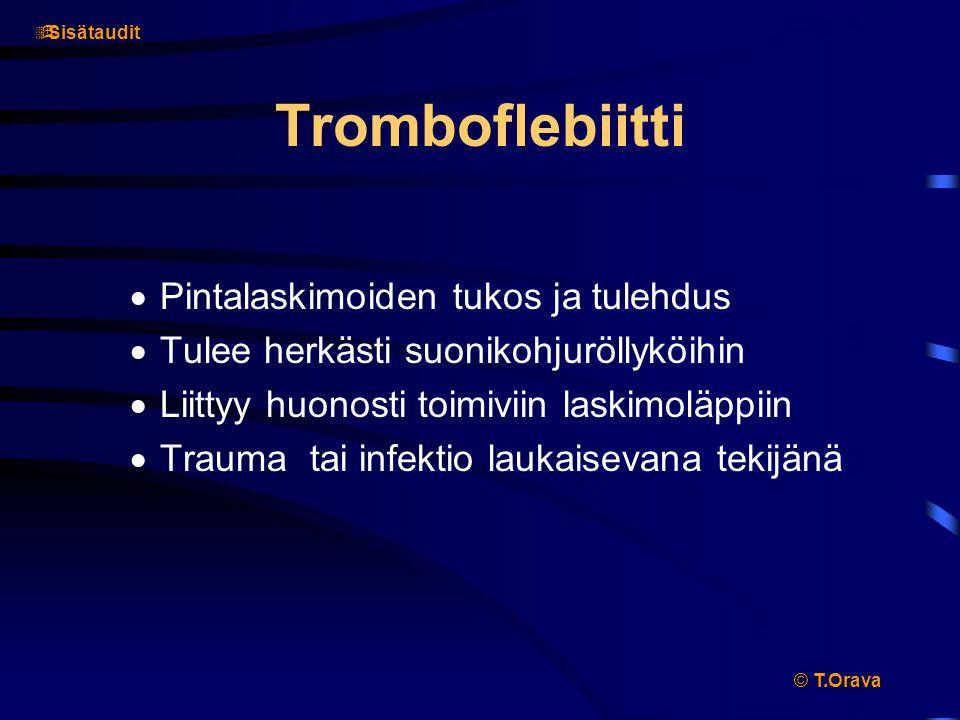 Tromboflebiitti Pintalaskimoiden tukos ja tulehdus