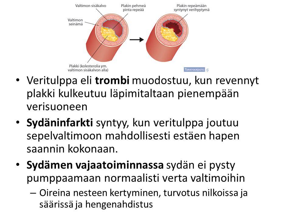 Veritulppa eli trombi muodostuu, kun revennyt plakki kulkeutuu läpimitaltaan pienempään verisuoneen