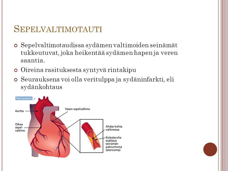 Sepelvaltimotauti Sepelvaltimotaudissa sydämen valtimoiden seinämät tukkeutuvat, joka heikentää sydämen hapen ja veren saantia.