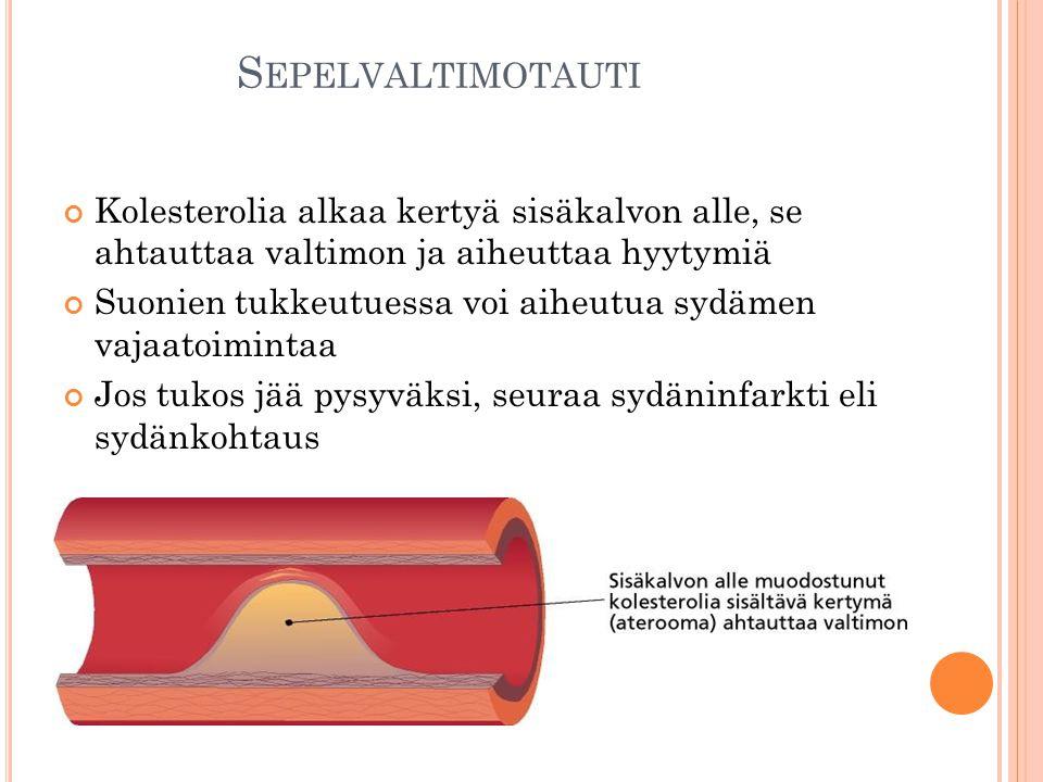 Sepelvaltimotauti Kolesterolia alkaa kertyä sisäkalvon alle, se ahtauttaa valtimon ja aiheuttaa hyytymiä.