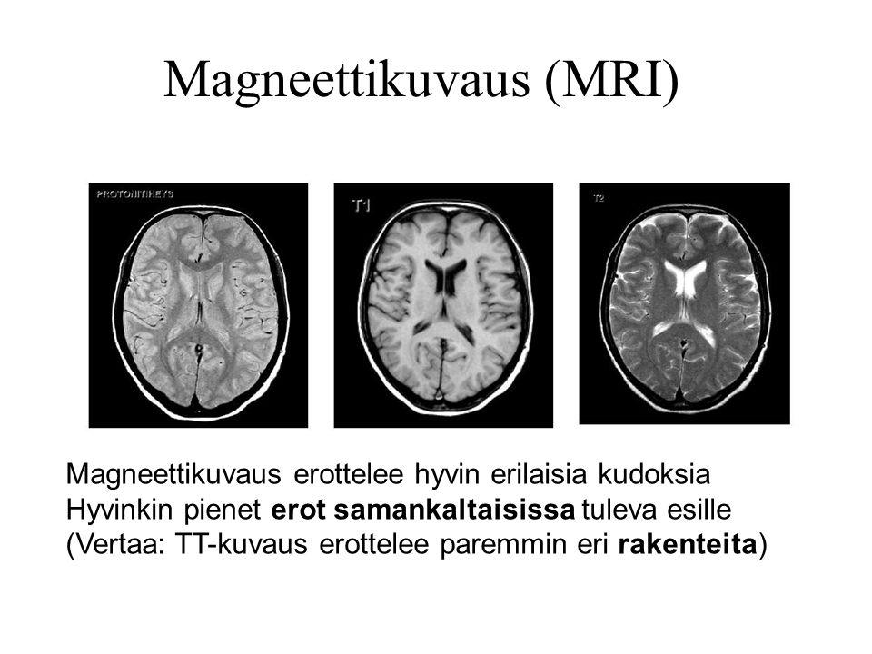 Magneettikuvaus (MRI)