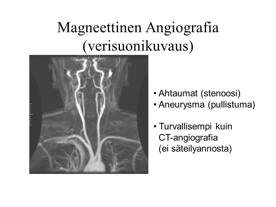 Magneettinen Angiografia (verisuonikuvaus)