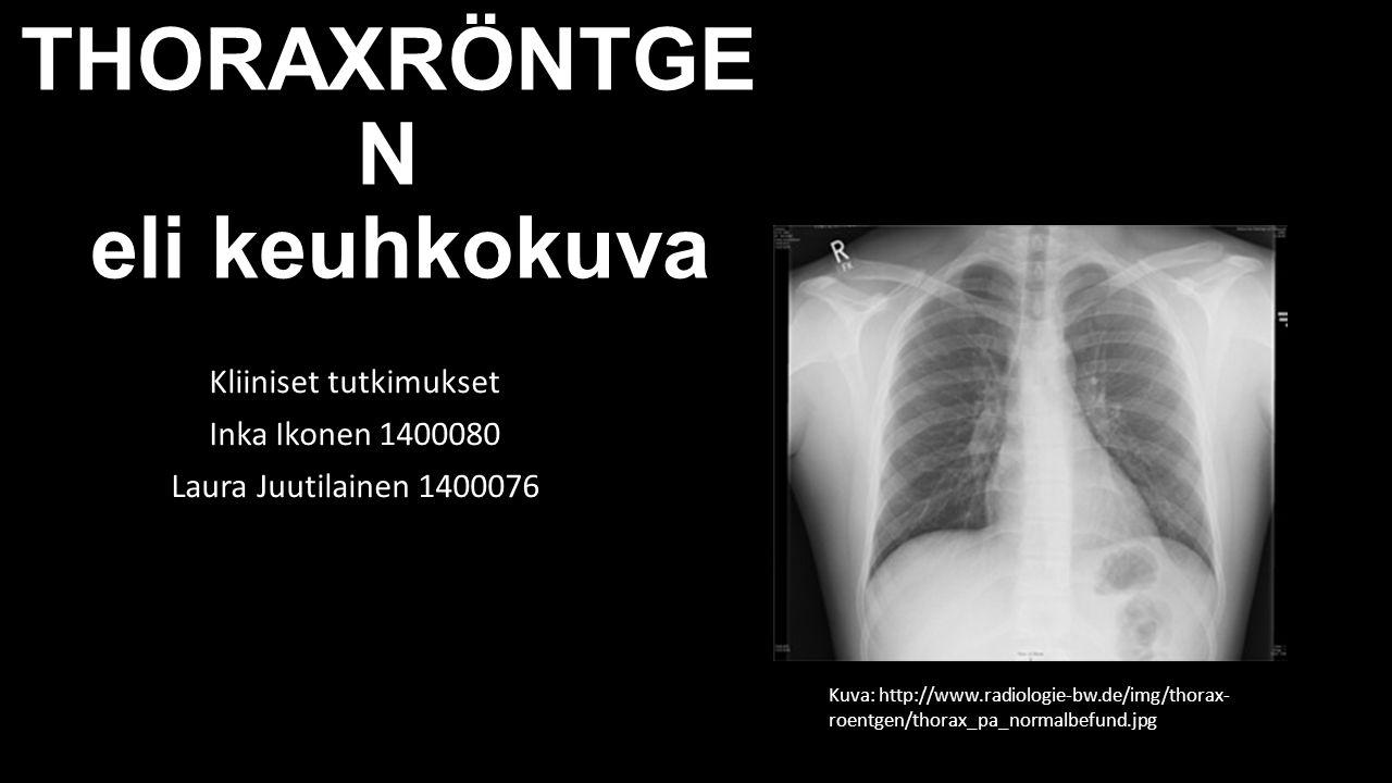 THORAXRÖNTGEN eli keuhkokuva