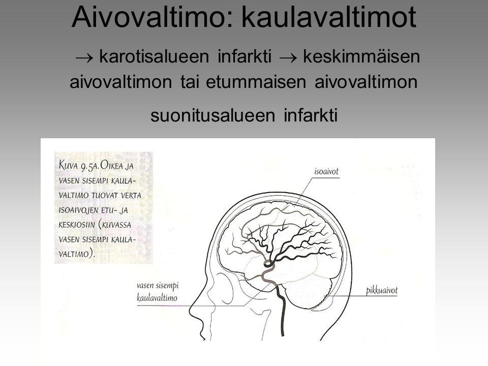 Aivovaltimo: kaulavaltimot  karotisalueen infarkti  keskimmäisen aivovaltimon tai etummaisen aivovaltimon suonitusalueen infarkti