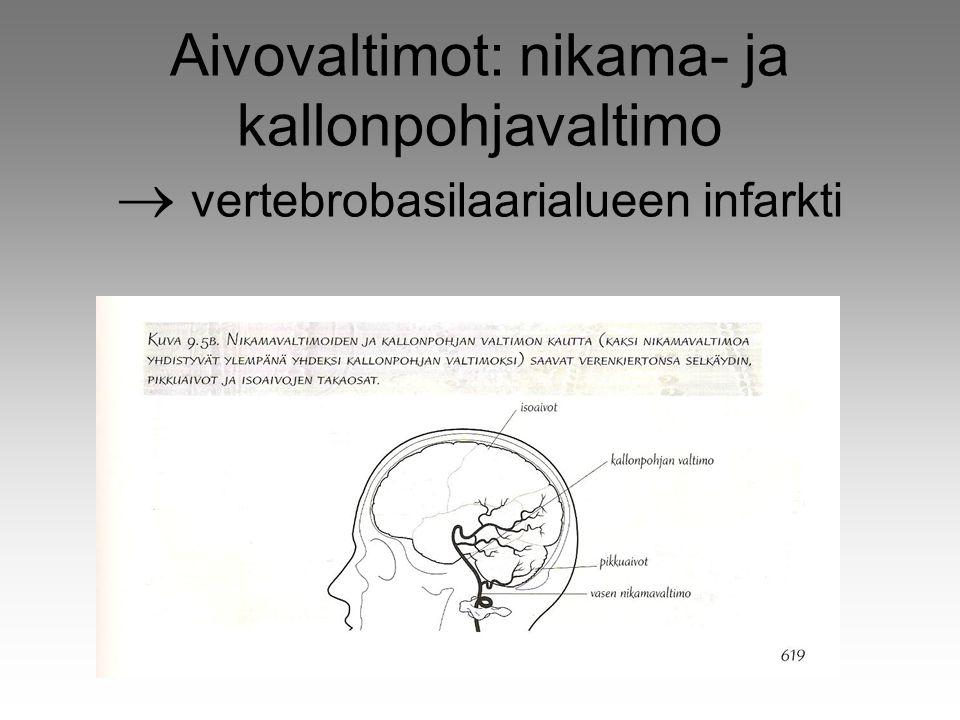 Aivovaltimot: nikama- ja kallonpohjavaltimo  vertebrobasilaarialueen infarkti