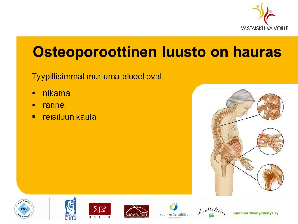 Osteoporoottinen luusto on hauras