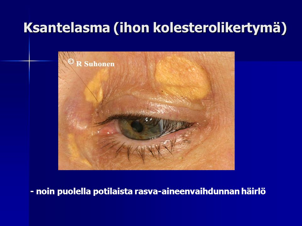 Ksantelasma (ihon kolesterolikertymä)