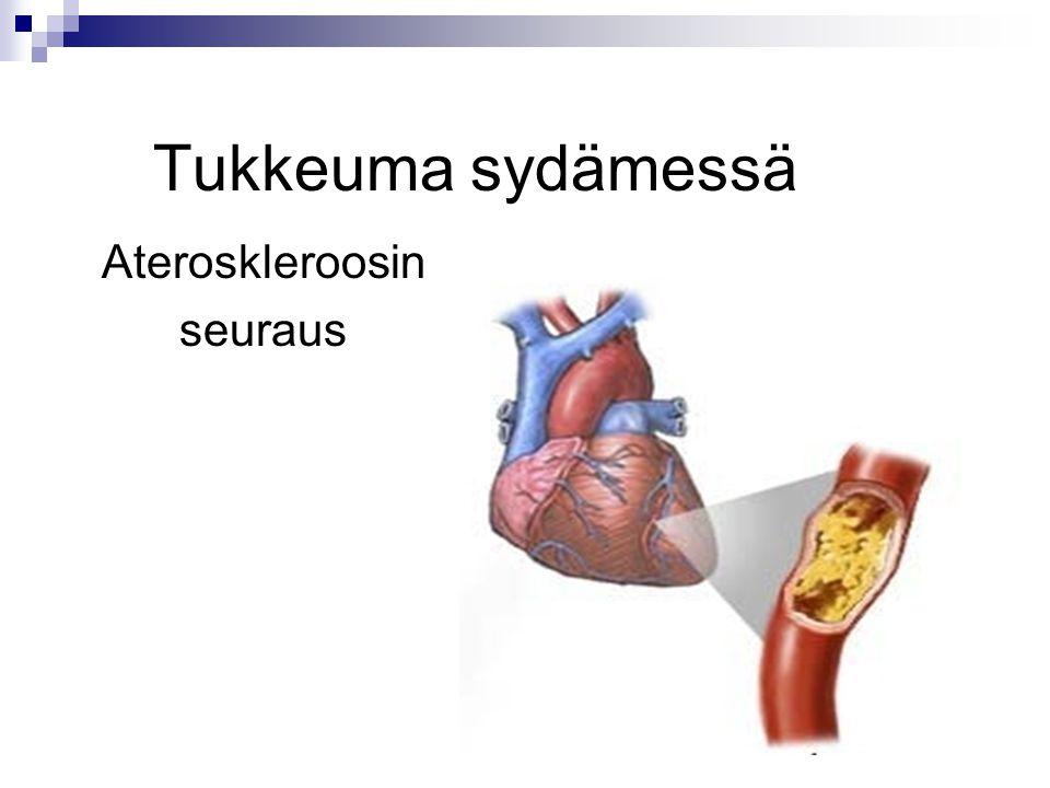 Tukkeuma sydämessä Ateroskleroosin seuraus