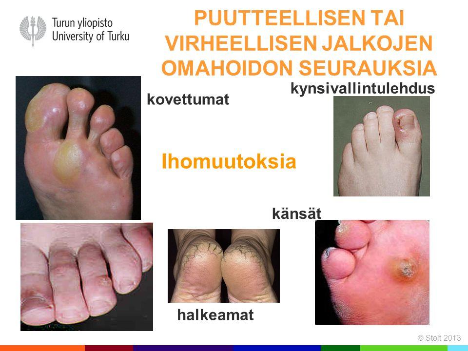 Puutteellisen tai virheellisen jalkojen omahoidon seurauksia