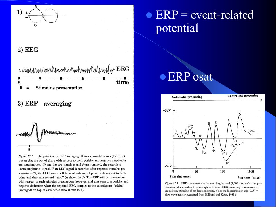ERP = event-related potential