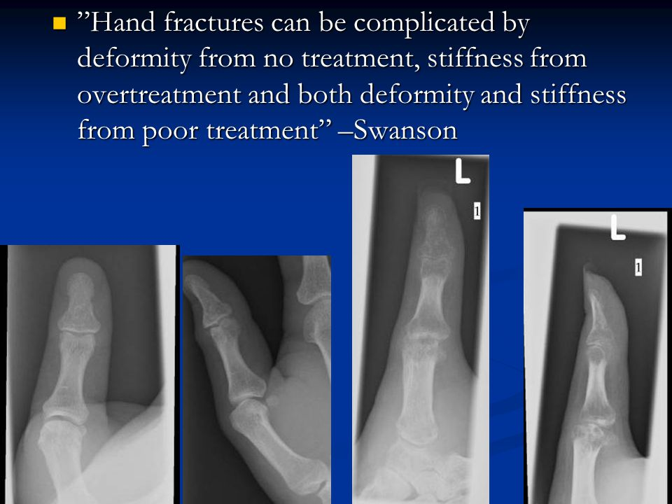Hand fractures can be complicated by deformity from no treatment, stiffness from overtreatment and both deformity and stiffness from poor treatment –Swanson