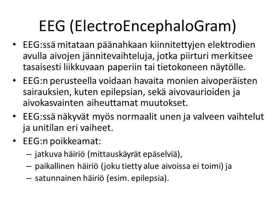 EEG-kytkennät